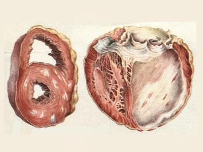 symptomen van glutenallergie